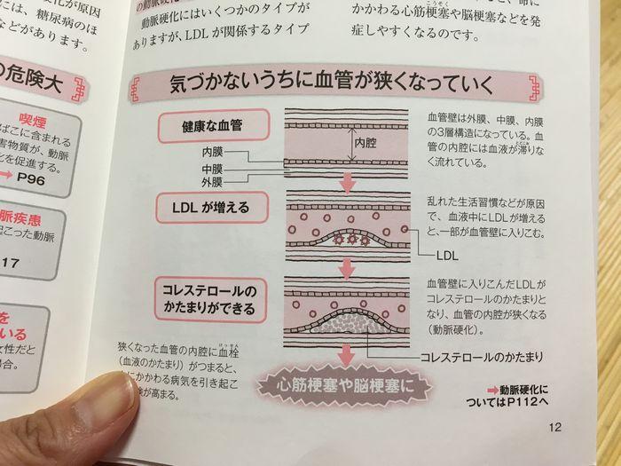 悪玉(LDL)コレステロール値